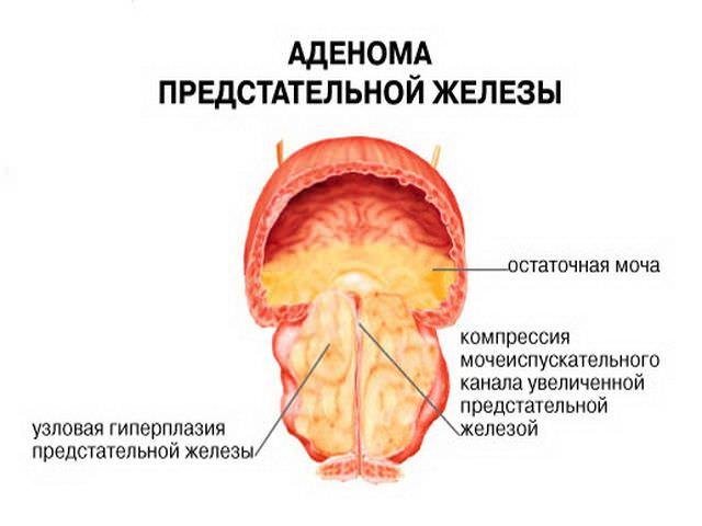 Лечение хронического простатита народные средства