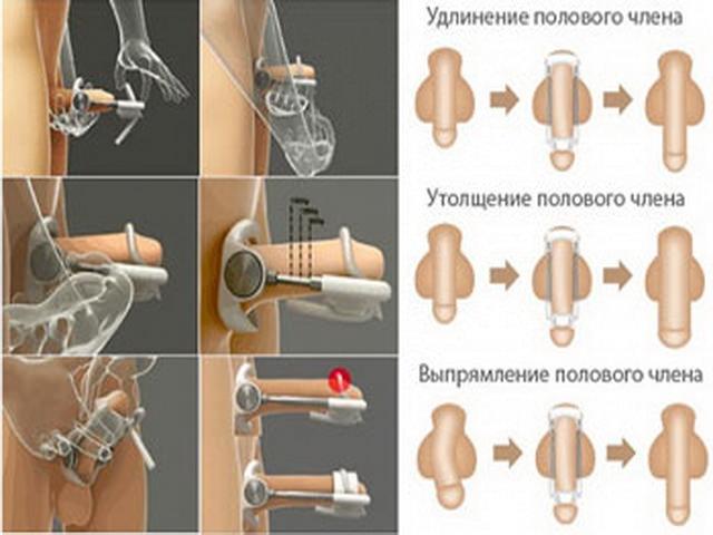 Как делать массаж на члень фото 765-340
