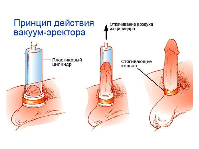 Увеличение члена хирургами