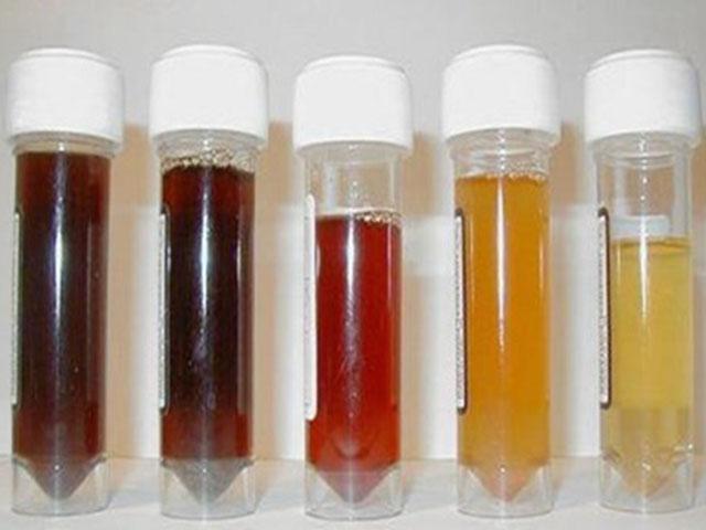 Кровь в моче после приема антибиотиков
