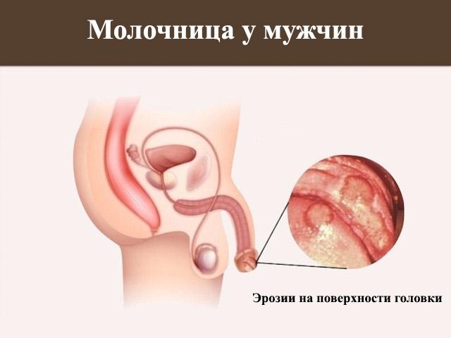 Простатит покраснение головки пантогематоген от простатита